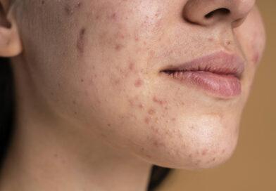 Piora da acne: o que saber e como tratar